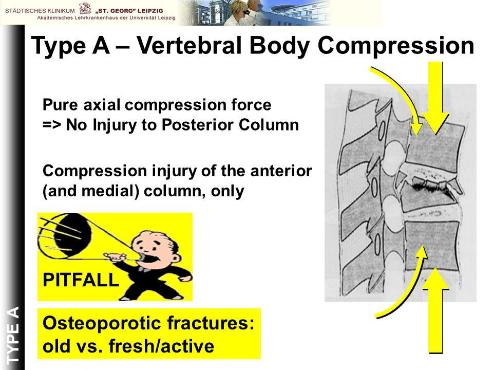 Type A – Vertebral Body Compression