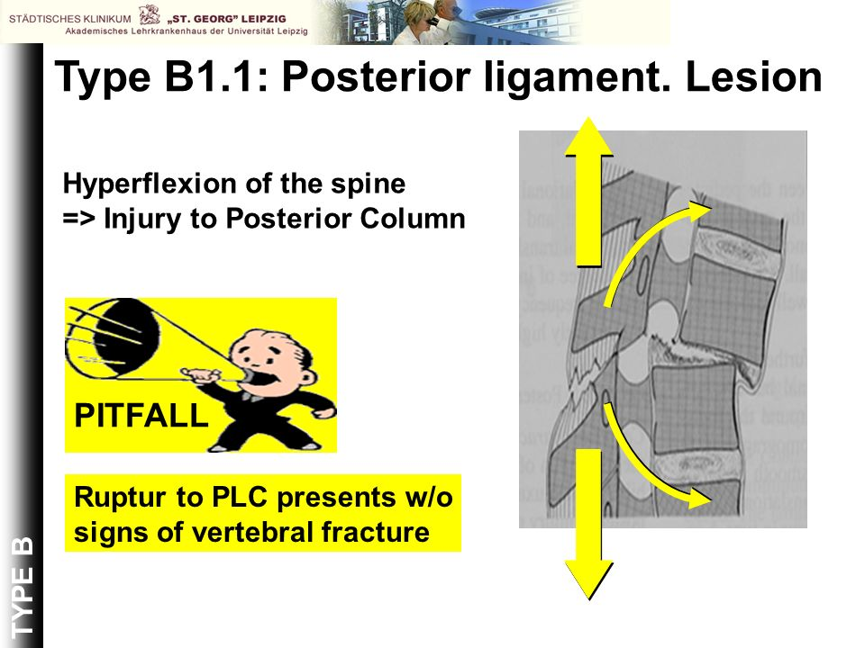 Type B1.1: Posterior ligament. Lesion