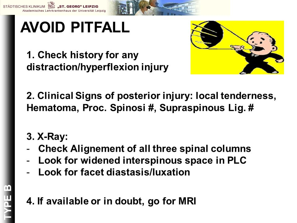 AVOID PITFALL Check history for any distraction/hyperflexion injury