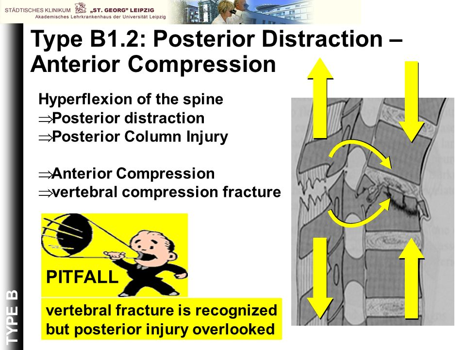 Type B1.2: Posterior Distraction – Anterior Compression