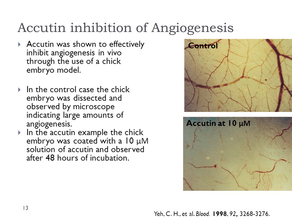 Accutin inhibition of Angiogenesis