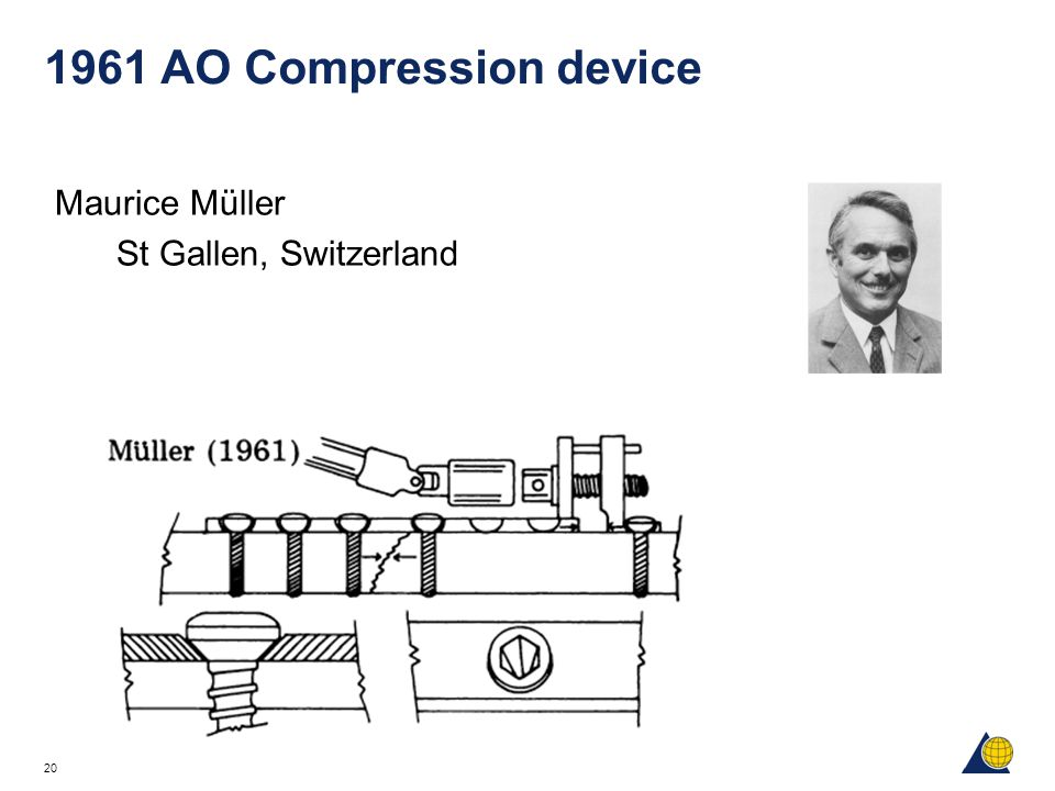 1961 AO Compression device Maurice Müller St Gallen, Switzerland