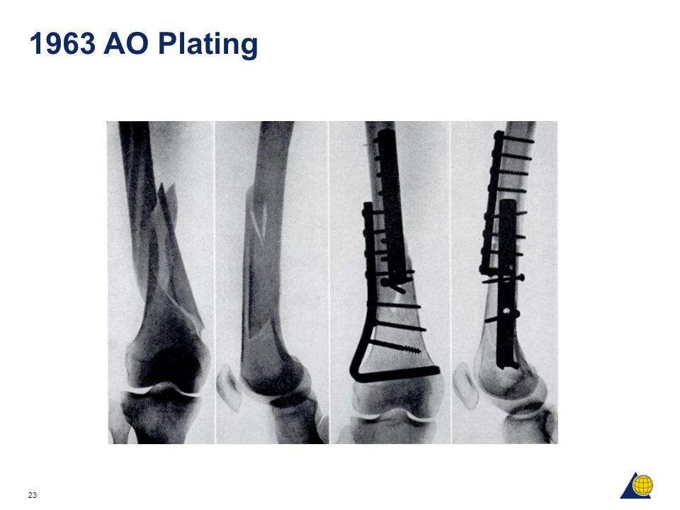 1963 AO Plating Photograph is from Technique of Internal Fixation of Fractures, page 150, Fig 157.