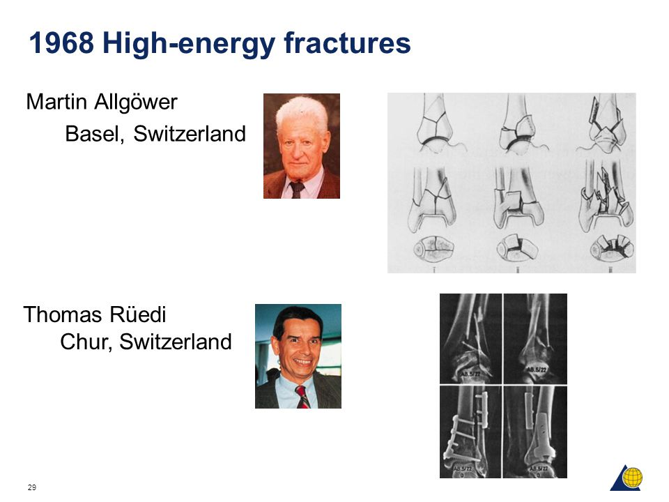 1968 High-energy fractures