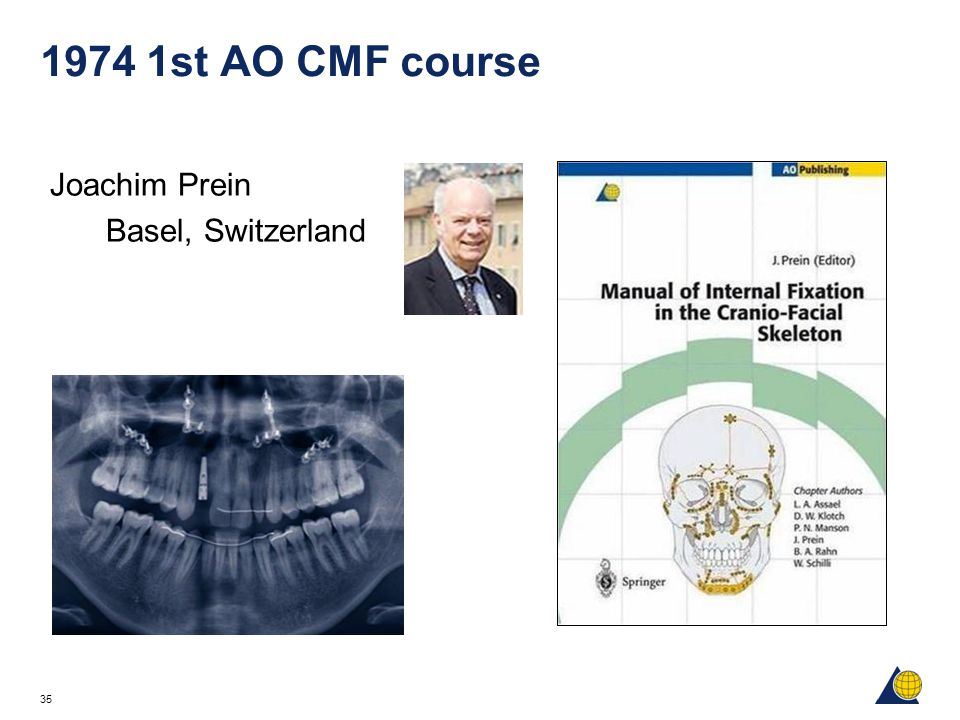 1974 1st AO CMF course Joachim Prein Basel, Switzerland