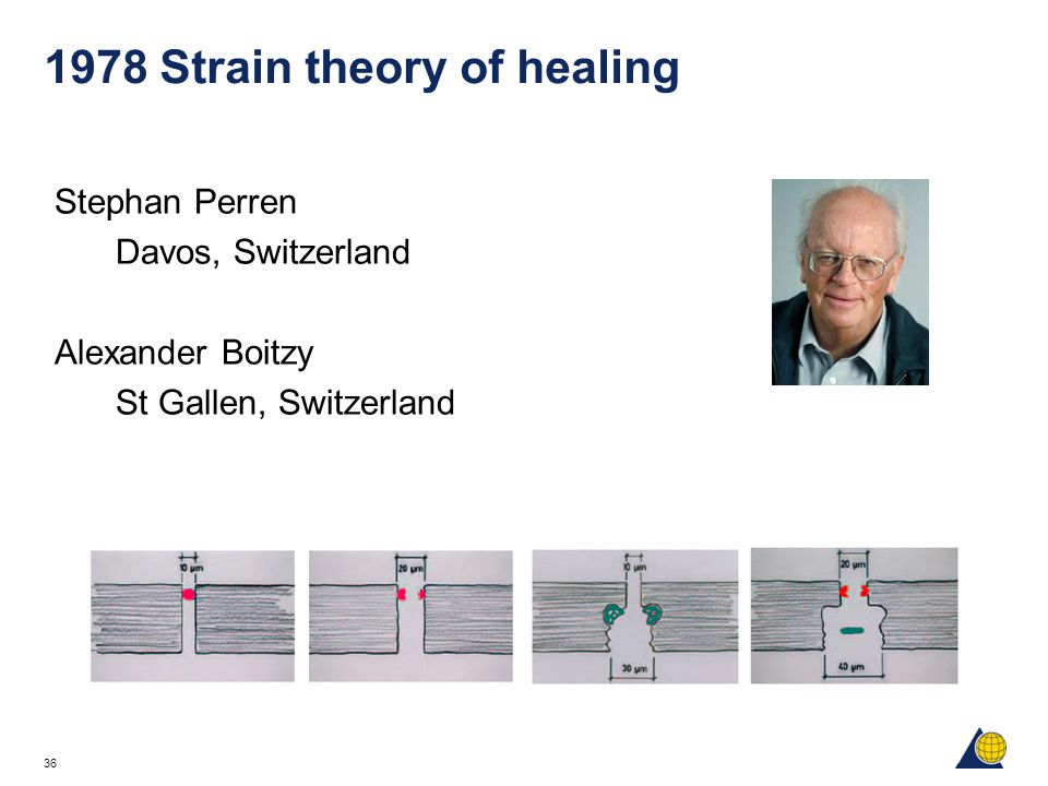 1978 Strain theory of healing