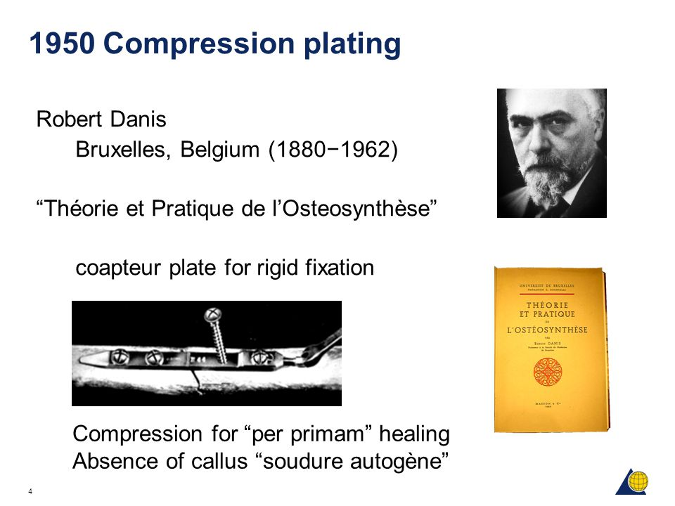 1950 Compression plating Robert Danis Bruxelles, Belgium (1880−1962)