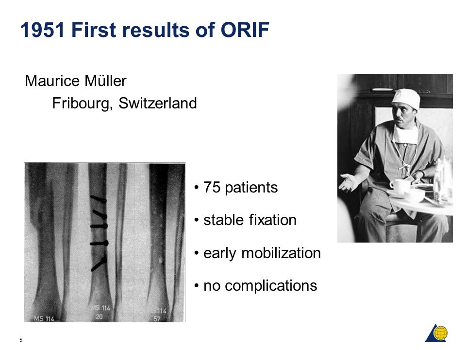 1951 First results of ORIF Maurice Müller Fribourg, Switzerland