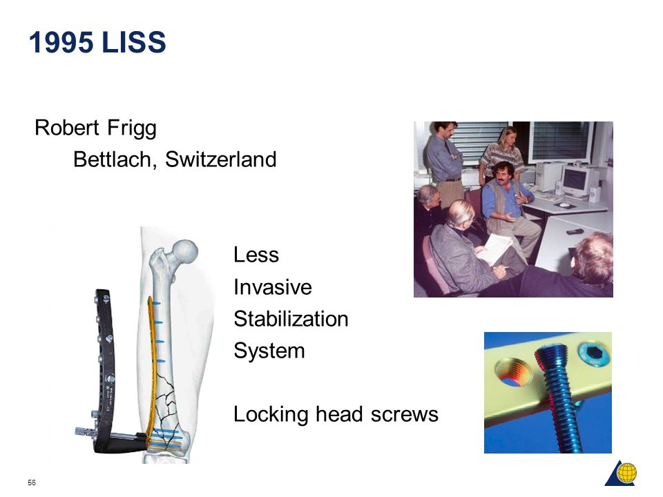 1995 LISS Robert Frigg Bettlach, Switzerland Less Invasive