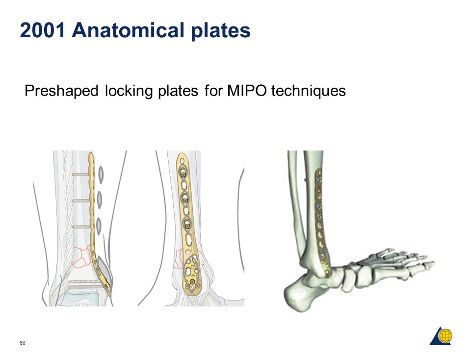 2001 Anatomical plates Preshaped locking plates for MIPO techniques