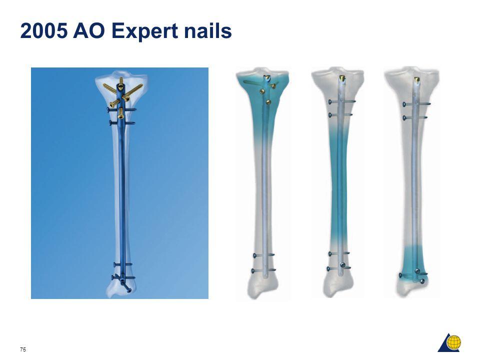 2005 AO Expert nails