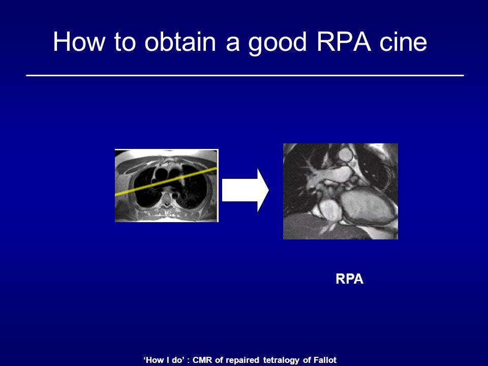 How to obtain a good RPA cine