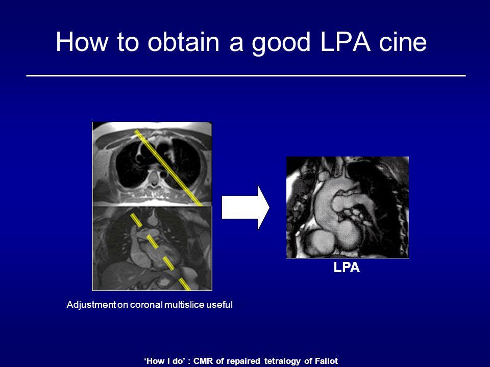 How to obtain a good LPA cine