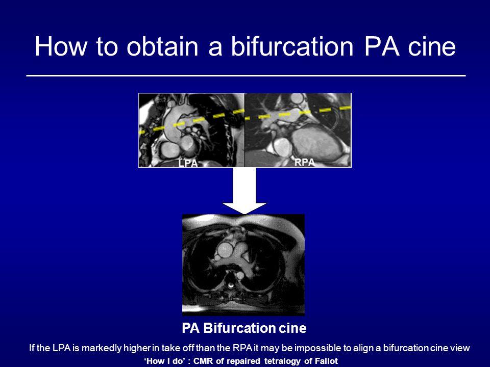 How to obtain a bifurcation PA cine