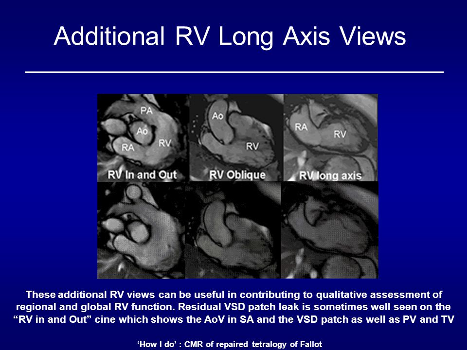 Additional RV Long Axis Views