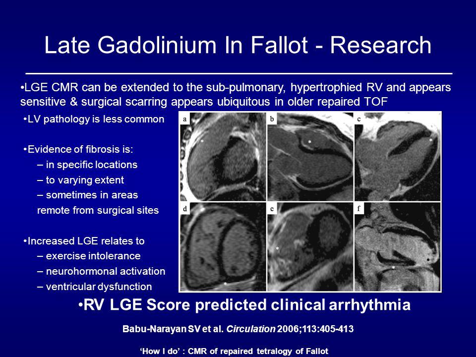 Late Gadolinium In Fallot - Research