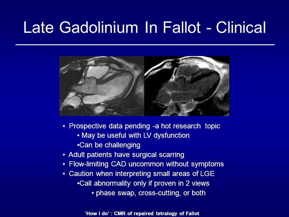 Late Gadolinium In Fallot - Clinical