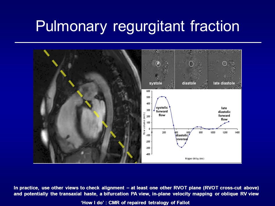 'How I do' : CMR of repaired tetralogy of Fallot