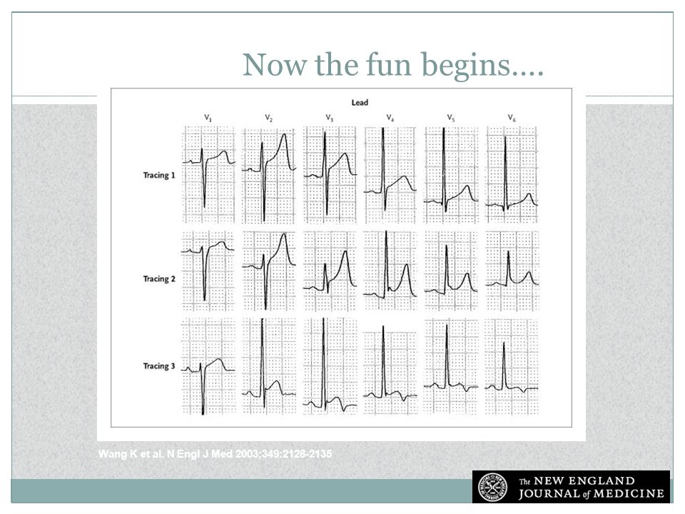 Now the fun begins…. Electrocardiograms Showing Normal ST-Segment Elevation and Normal Variants.