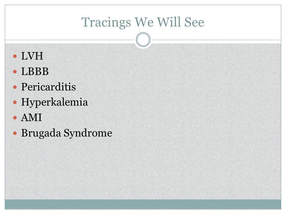 Tracings We Will See LVH LBBB Pericarditis Hyperkalemia AMI