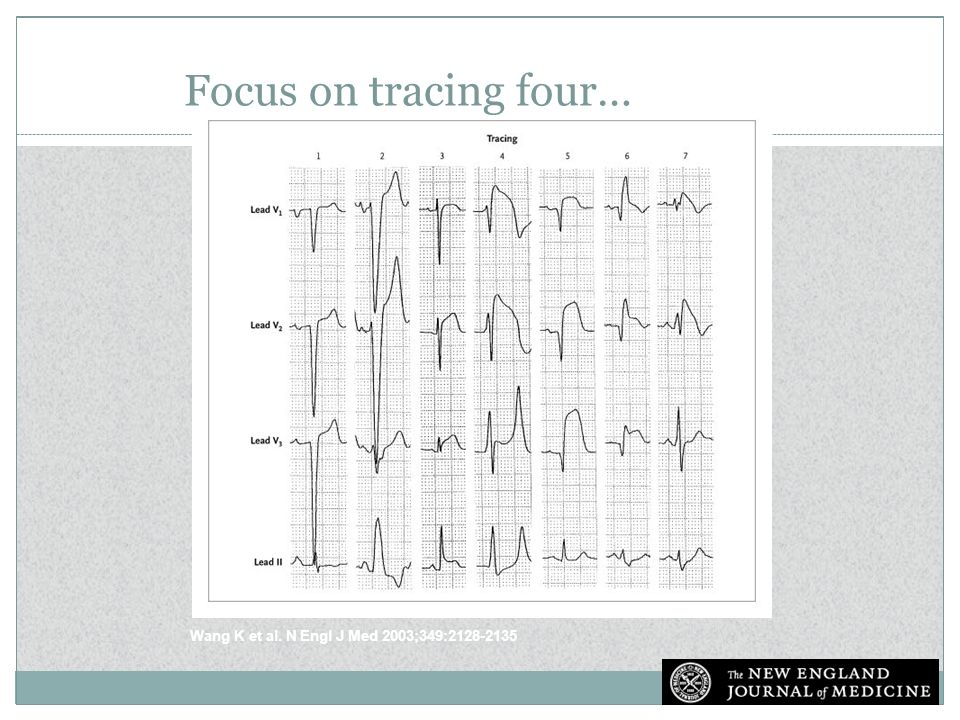 Electrocardiograms Showing ST-Segment Elevation in Various Conditions