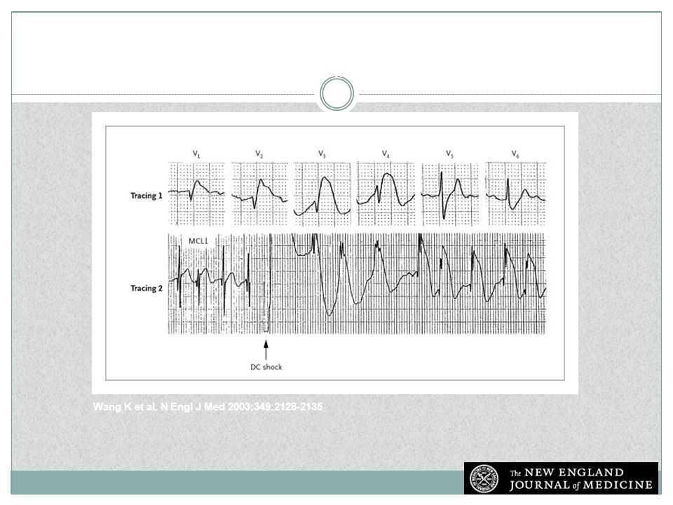 Electrocardiograms from a Patient with Massive Pulmonary Embolism Who Had a Normal Coronary Angiogram (Tracing 1) and a Patient with Transient ST-Segment Elevation Immediately after Direct-Current (DC) Countershock to the Precordium (Tracing 2)