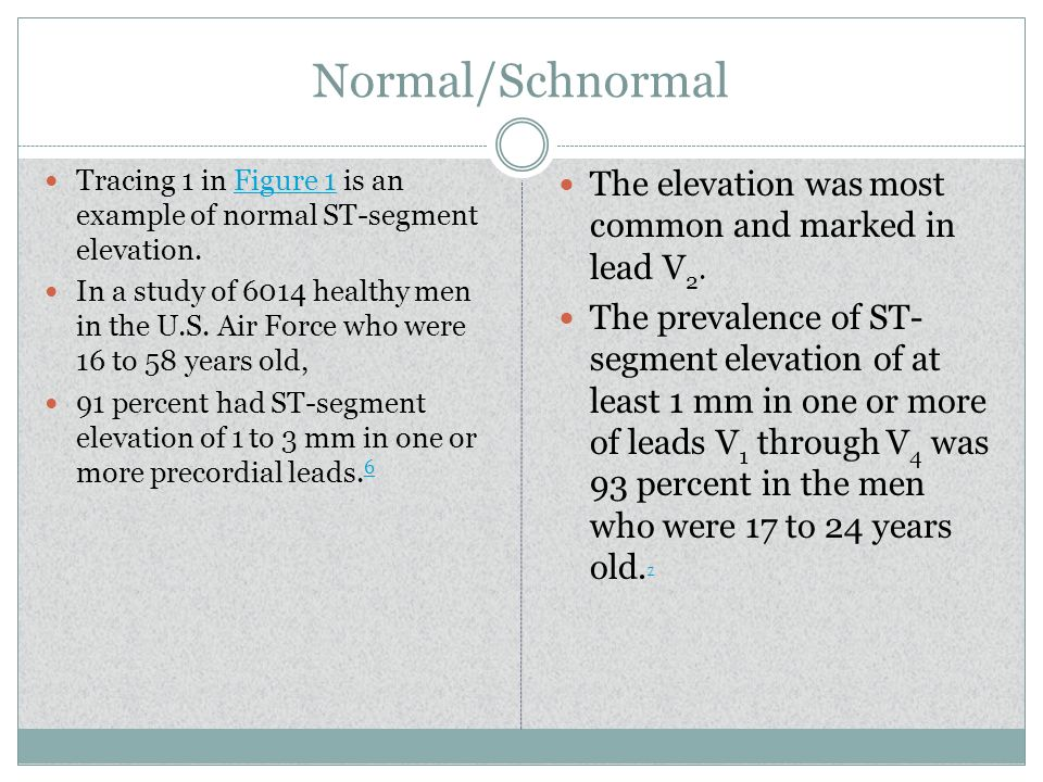 Normal/Schnormal The elevation was most common and marked in lead V2.