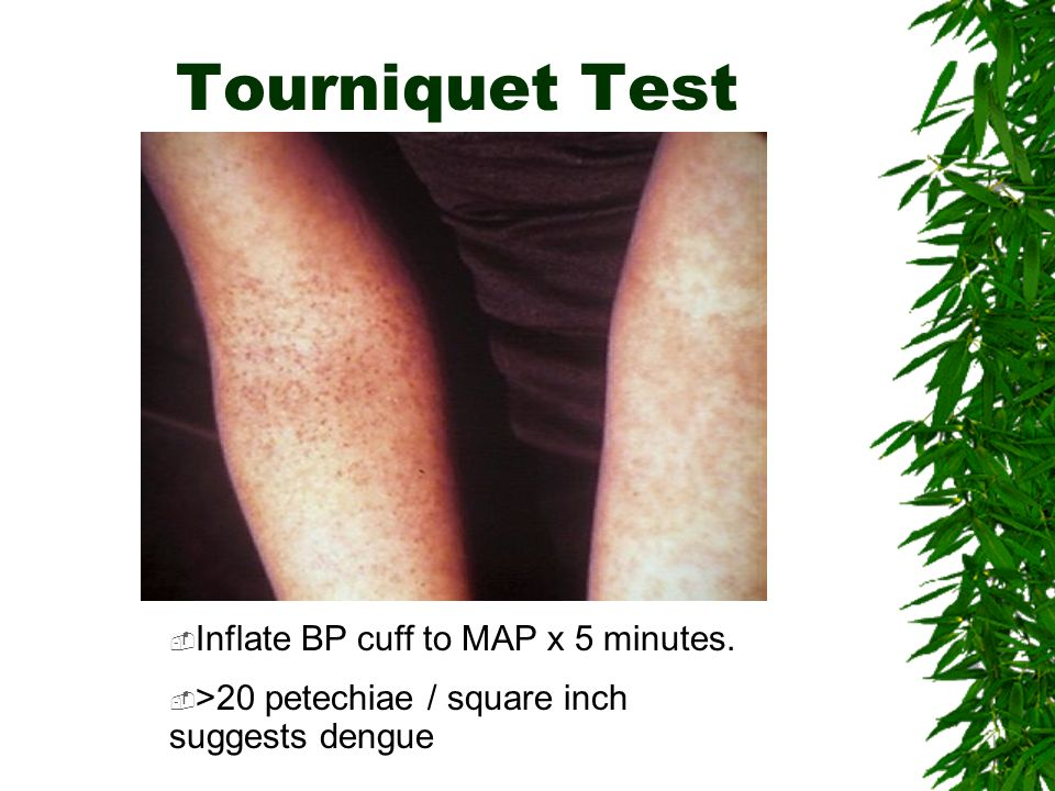 Tourniquet Test Inflate BP cuff to MAP x 5 minutes.