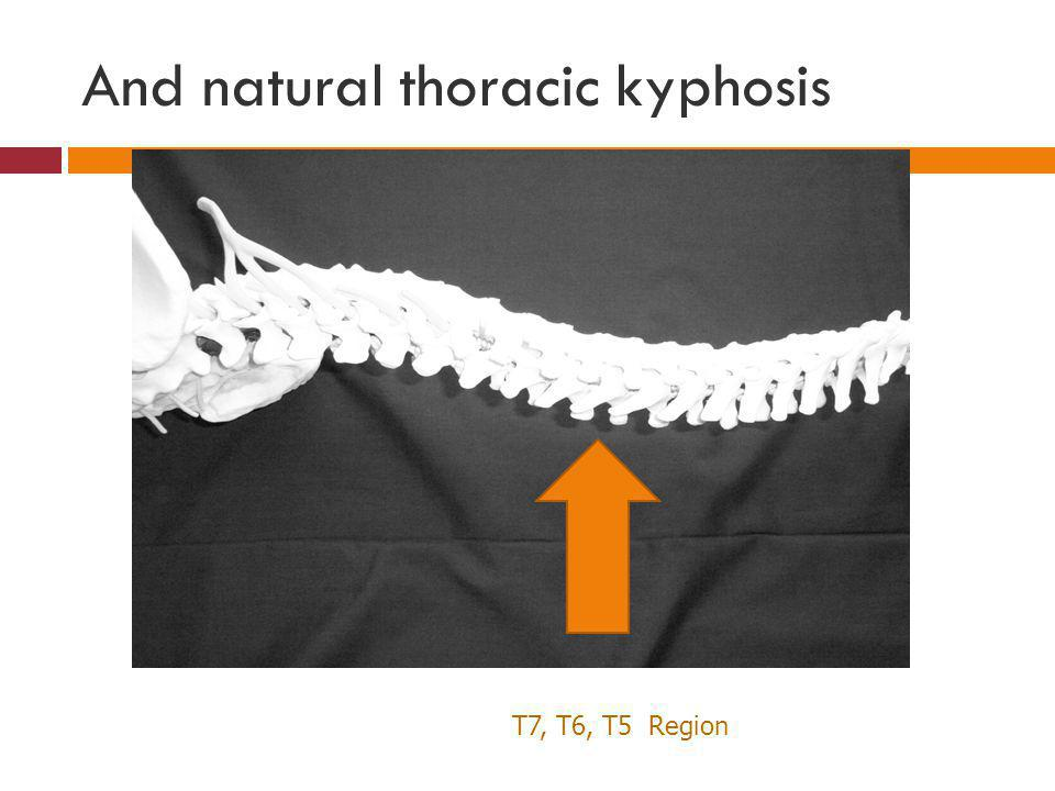 And natural thoracic kyphosis