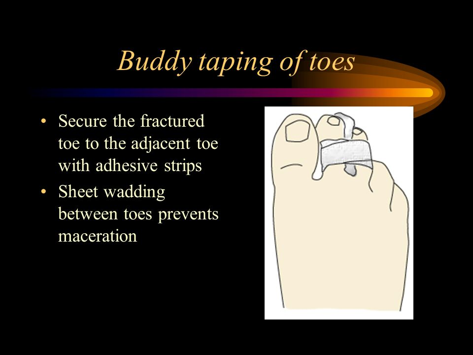 Buddy taping of toes Secure the fractured toe to the adjacent toe with adhesive strips.