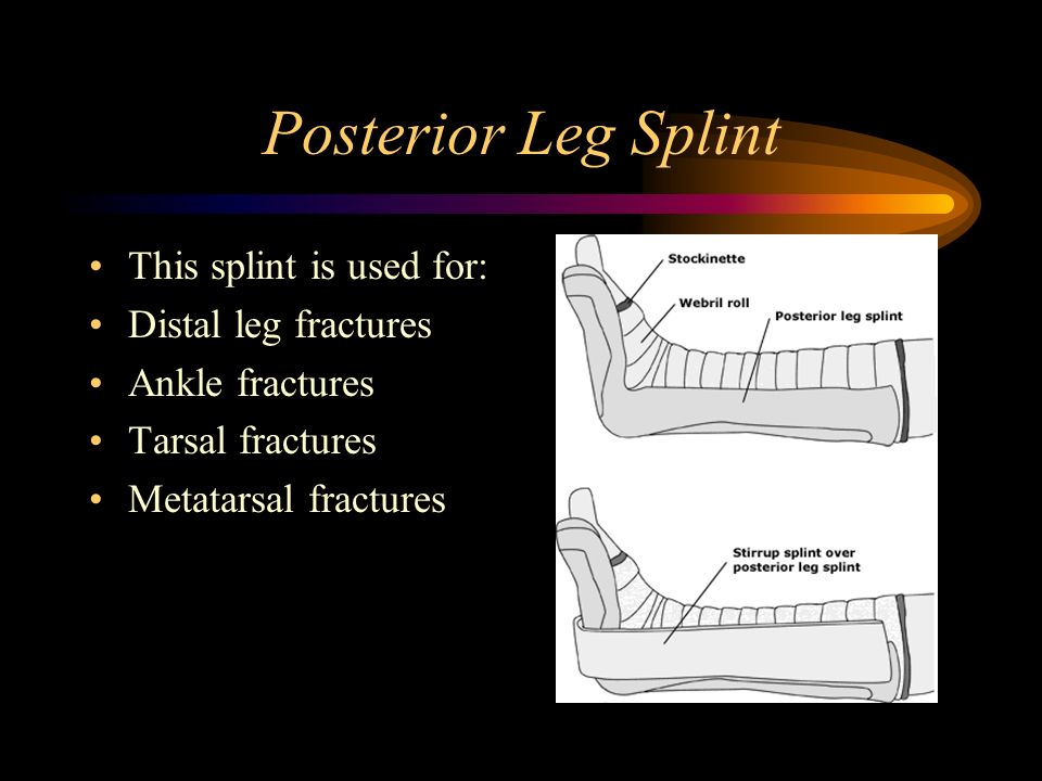 Posterior Leg Splint This splint is used for: Distal leg fractures