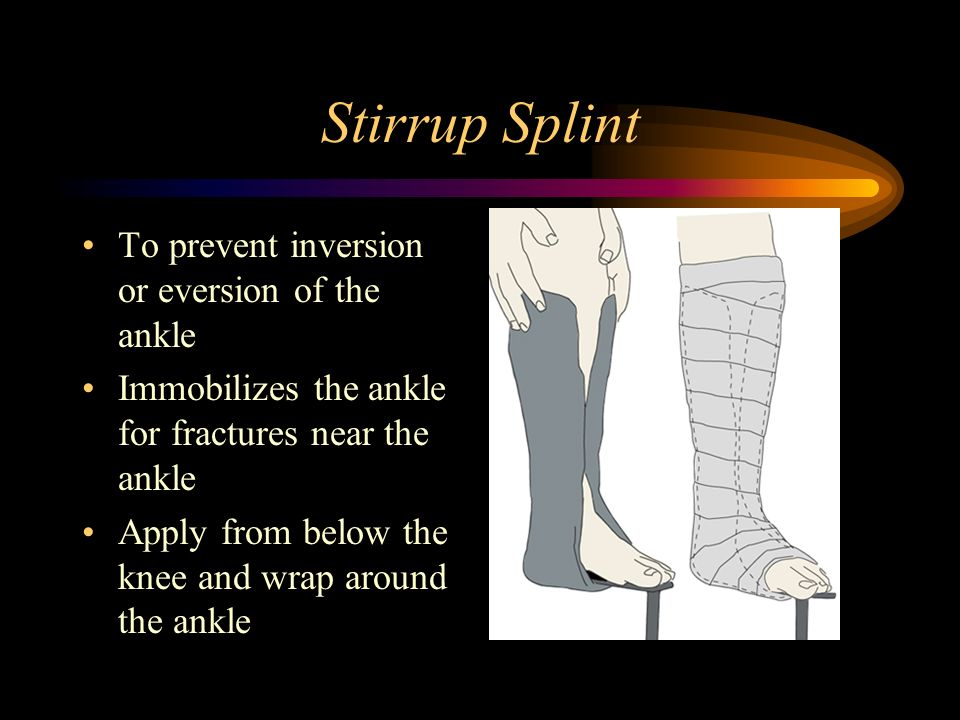 Stirrup Splint To prevent inversion or eversion of the ankle