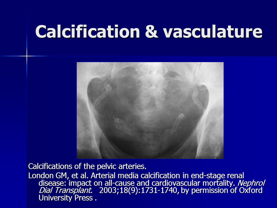 Calcification & vasculature
