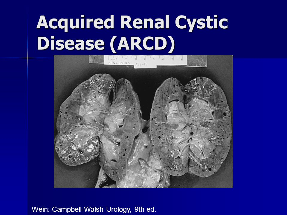Acquired Renal Cystic Disease (ARCD)