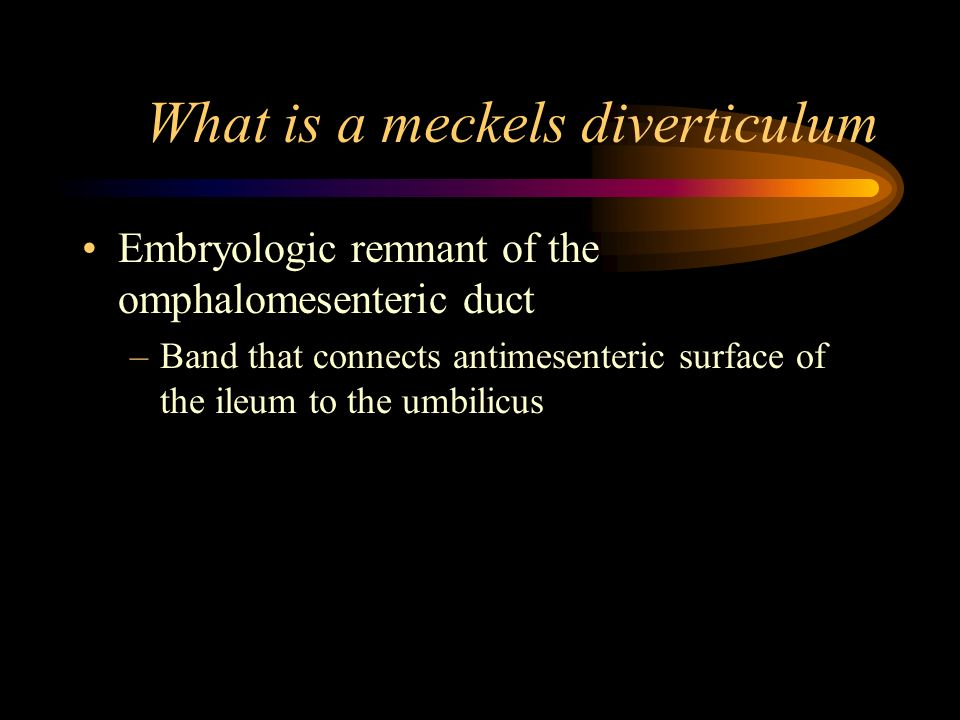 What is a meckels diverticulum