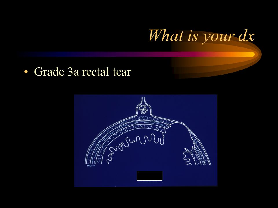 What is your dx Grade 3a rectal tear