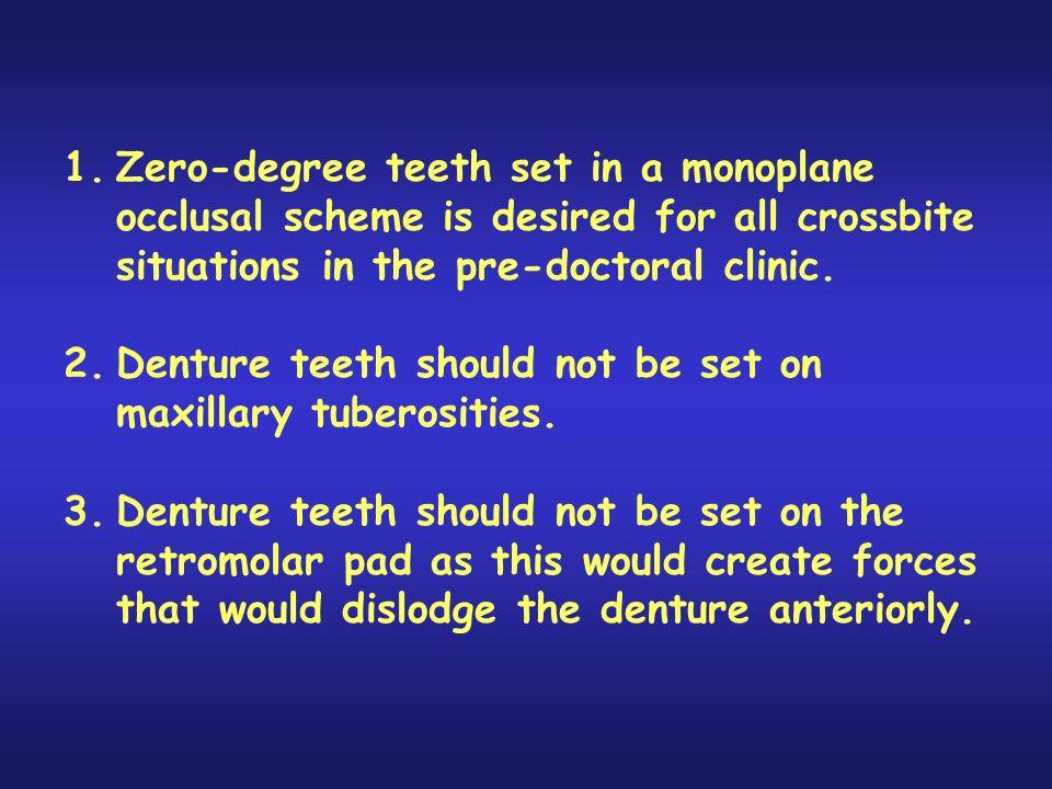 Denture teeth should not be set on maxillary tuberosities.