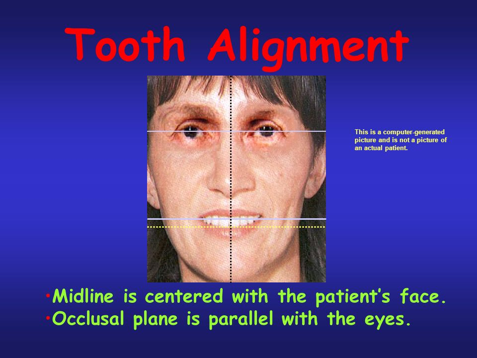 Tooth Alignment Midline is centered with the patient's face.