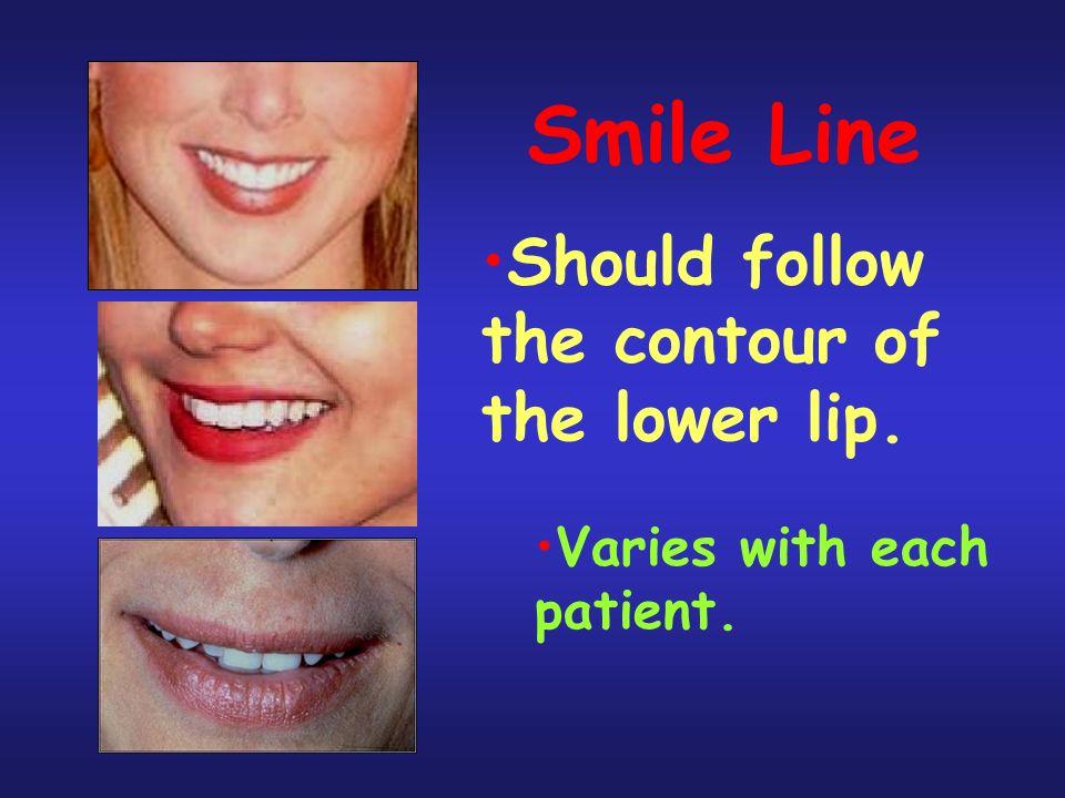 Smile Line Should follow the contour of the lower lip.