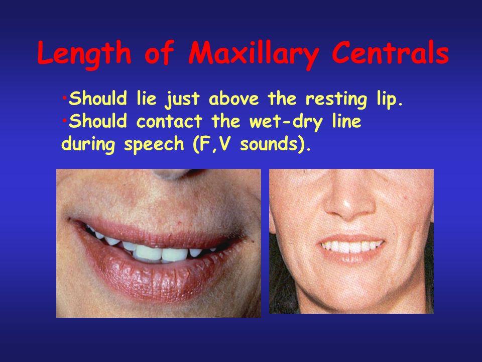 Length of Maxillary Centrals