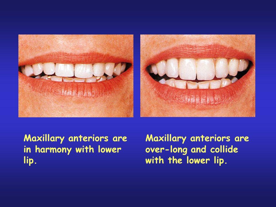 Maxillary anteriors are in harmony with lower lip.