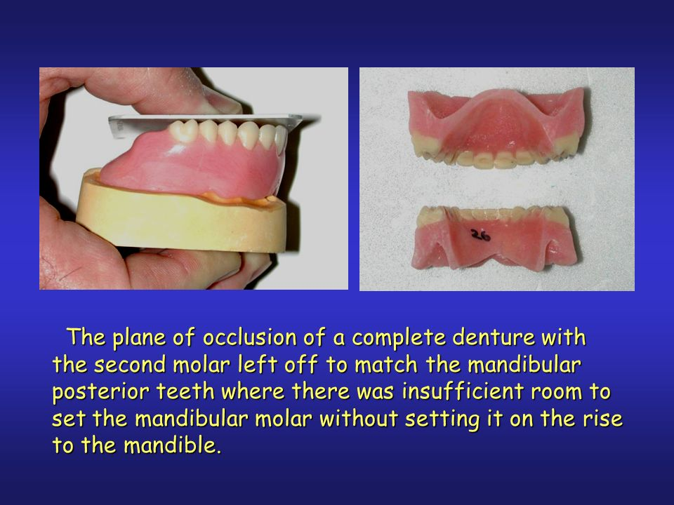 The plane of occlusion of a complete denture with the second molar left off to match the mandibular posterior teeth where there was insufficient room to set the mandibular molar without setting it on the rise to the mandible.