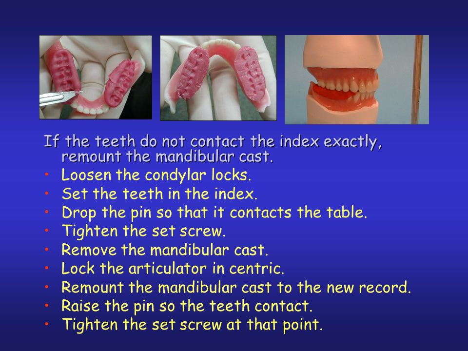 Loosen the condylar locks. Set the teeth in the index.
