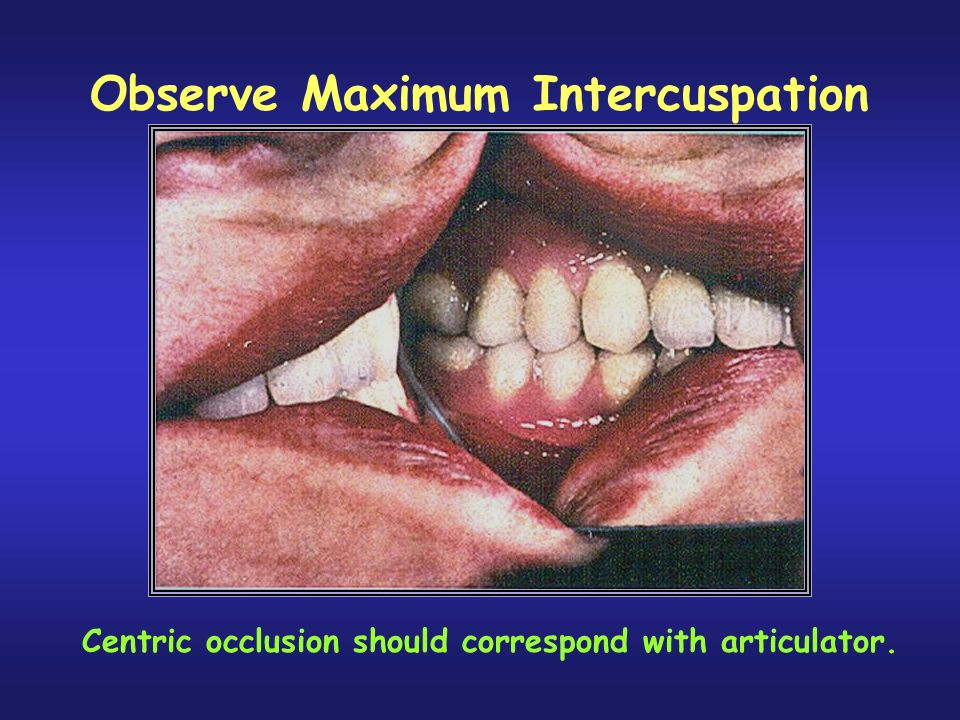 Observe Maximum Intercuspation
