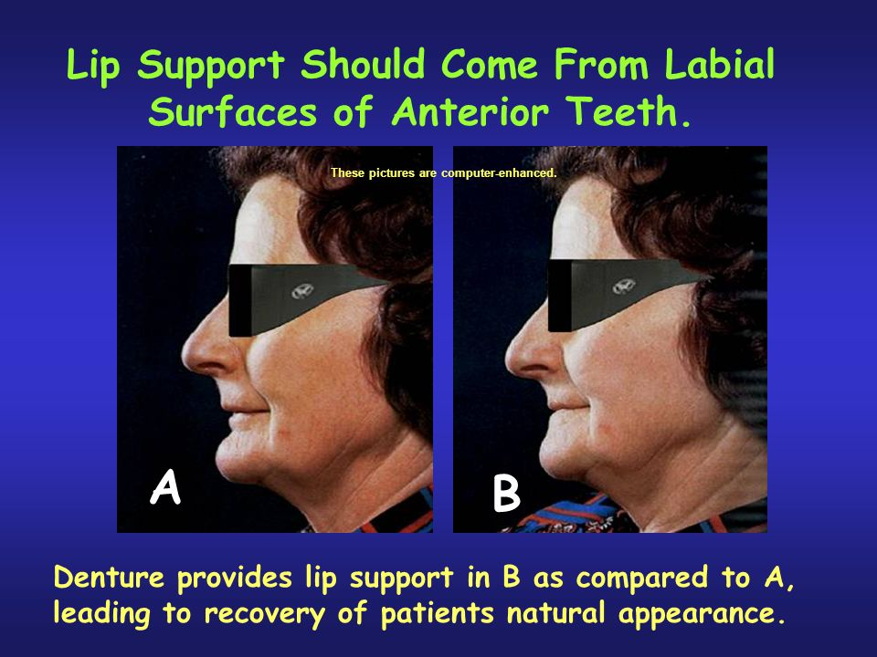 Lip Support Should Come From Labial Surfaces of Anterior Teeth.