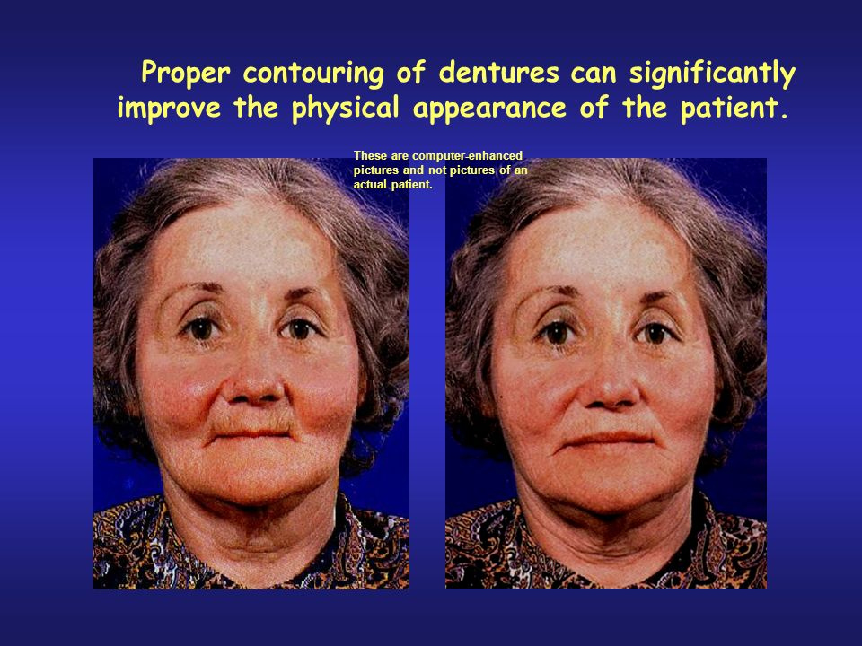 Proper contouring of dentures can significantly