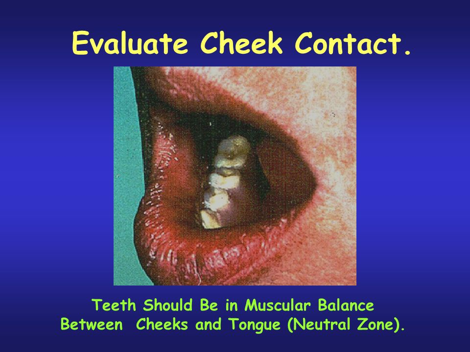 Evaluate Cheek Contact.