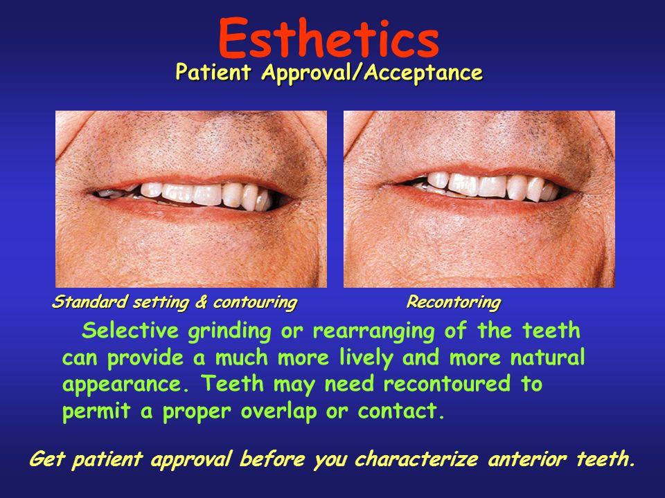 Esthetics Patient Approval/Acceptance