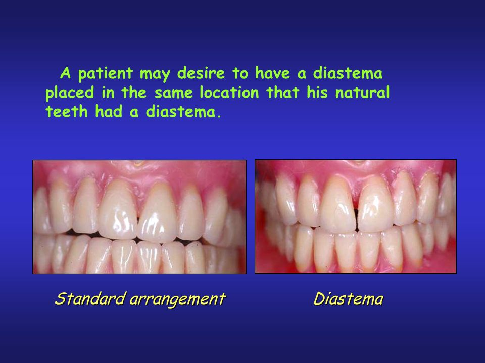 A patient may desire to have a diastema placed in the same location that his natural teeth had a diastema.