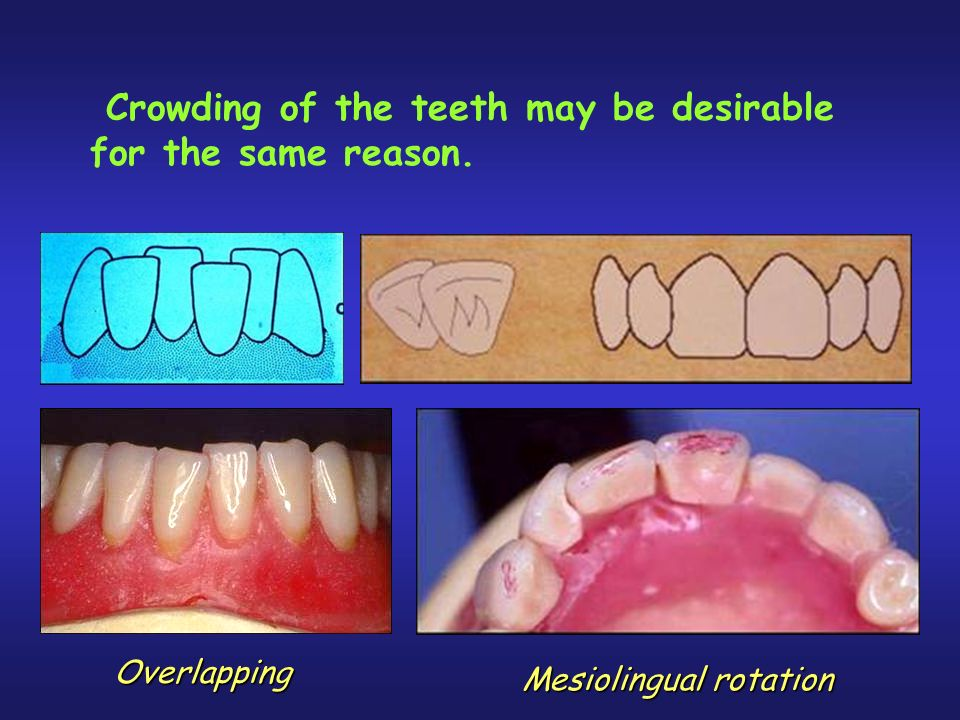 Crowding of the teeth may be desirable for the same reason.